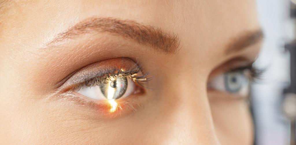 نگاهی به چگونگی عمل لیزیک چشم و معایب آن